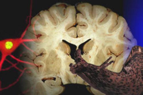 braindoctoral