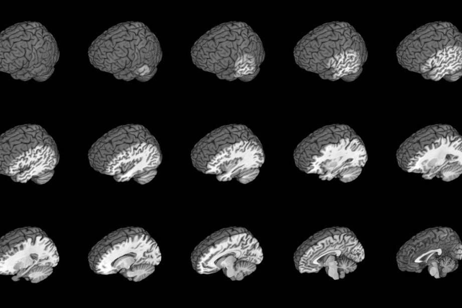 brainmontage1_resized-1024x614-e1534963963625
